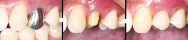 CAD/CAMハイブリッドセラミックスの治療例:保険適用で銀歯から白い歯へ!