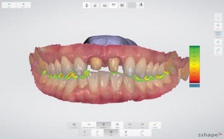 昨今、ジルコニアクラウンやCAD/CAM冠に代表されるようなデジタル(CAD/CAM システム)を応用した白い歯が急速に普及しています。 今後、歯科業界はますますデジタル化が進んでいくことは必至のことと感じております。 デジタル化された診療は、印象採得や補綴物の調整・セットの時間を短縮し、患者様の負 担を軽減する、より快適な診療を可能にします。