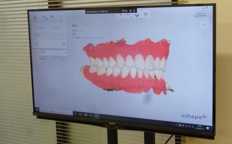 当院では、スキャンした口腔内については、大きなモニターを使用し解りやすく状況を説明しています。 患者さん自身の目で、自分のお口の中の状態を再認識して頂ける良い機会だと考えております。